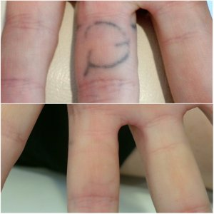 finger tattoo removal