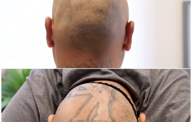 Evolve Tattoo Removal - Evolve Tattoo Removal